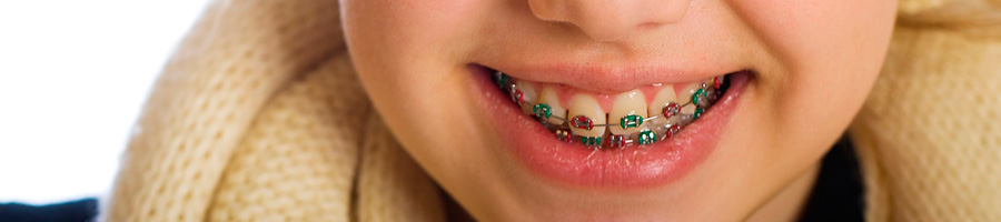 Ortodoncia tratamiento para niños