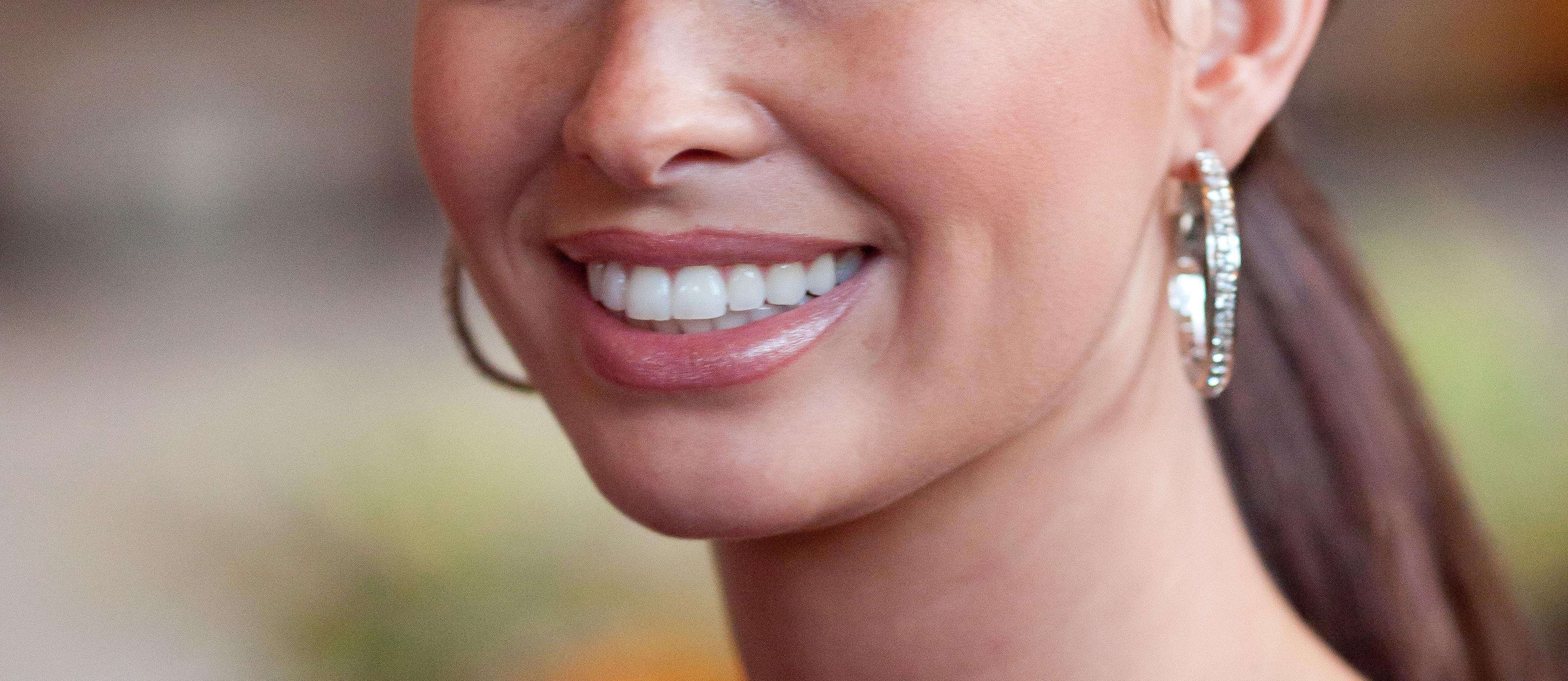 Profesionales en Ortodoncia y estética dental en Madrid