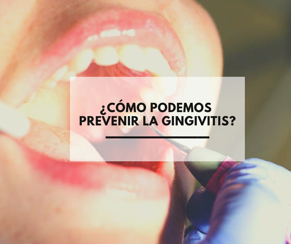 ¿Qué beneficios tiene el Invisalign frente a otros tratamientos_ (43)